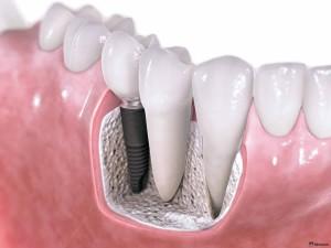 1367050891_dental-implants